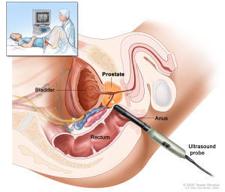 Biopsia prostatei | Blausen Medical